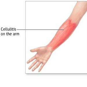 Natural cure for cellulitis healing pinterest