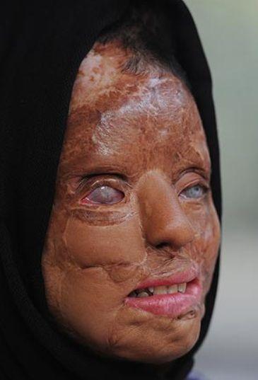 acid face attack