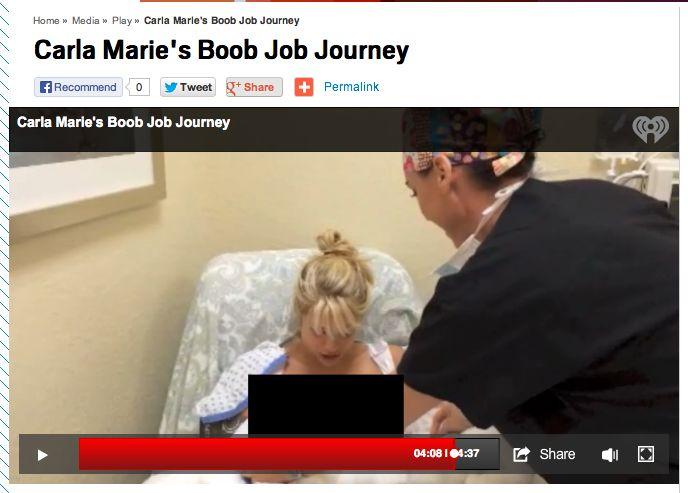 Carla Marie Boob Job