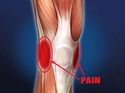 Lateral knee pain sudden knee pain pinterest for Exterior knee pain