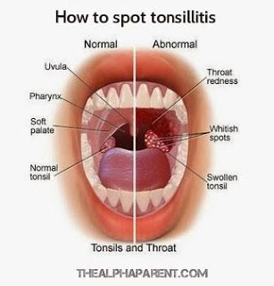 How to spot tonsillitis.