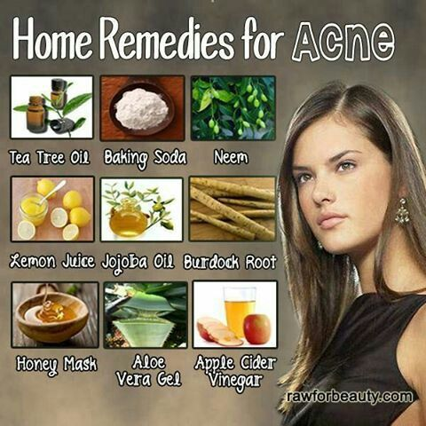 natural remedies for acne natural healing pinterest
