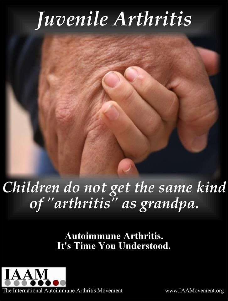 juvenile rheumatoid arthritis jra essay Juvenile rheumatoid arthritis free essays, term papers and book reports thousands of papers to select from all free.