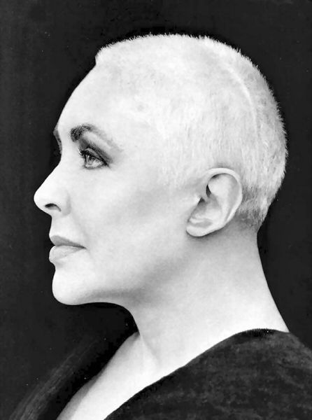 Dame Elizabeth Taylor - Still Beautiful Post Brain Surgery