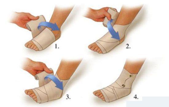 Рецепт от растяжения ноги