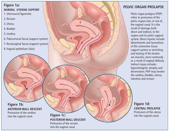 uterin prolaps smerter beautician birkerød