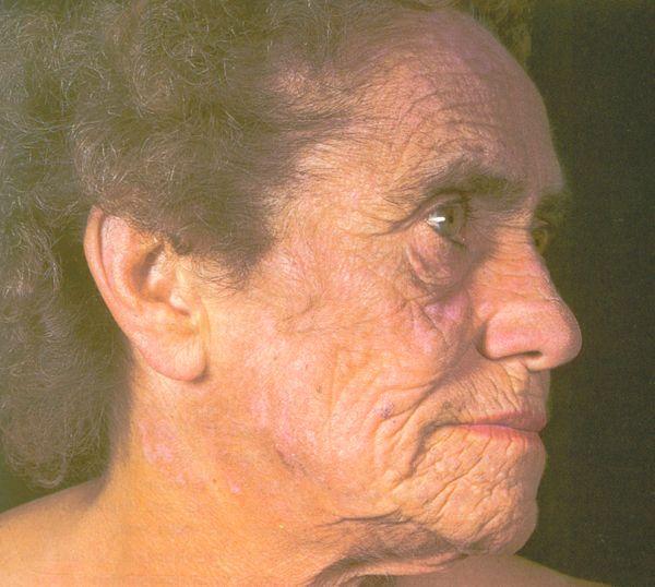 Porphyria - Wikipedia