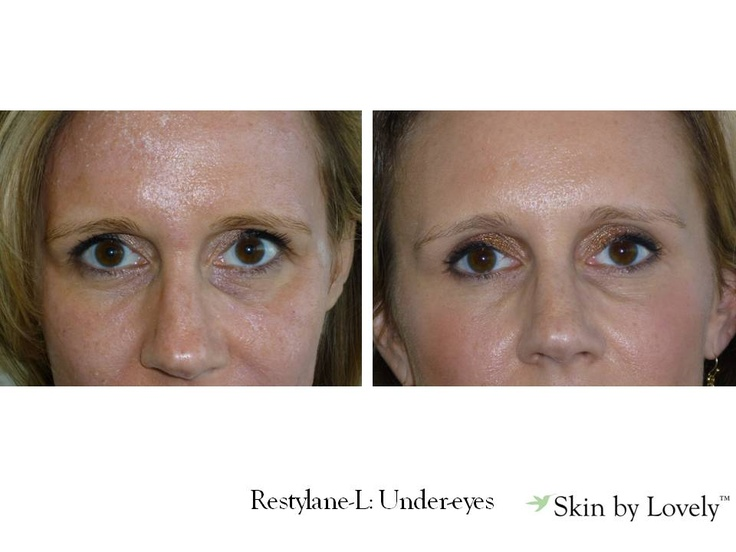 Restylane-L: Under-eyes   Before & After Gallery   Pinterest