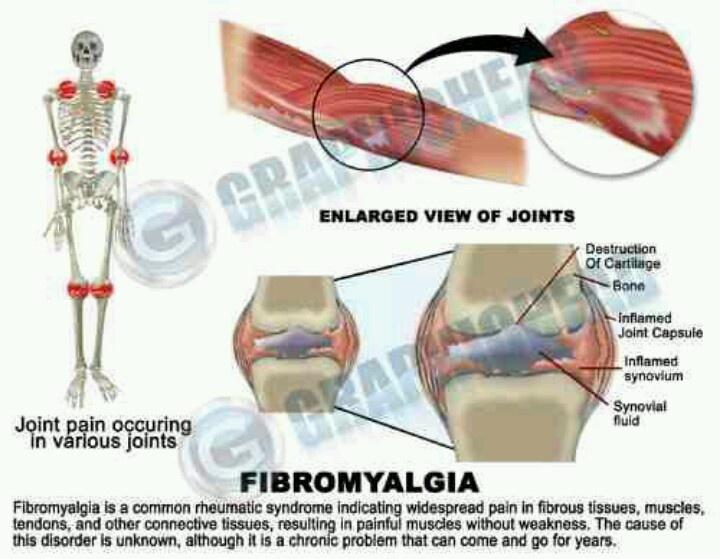 Joint pain | Fibromyalgia | Pinterest
