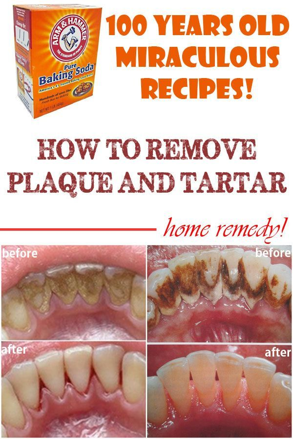 Home remedies to remove plaque and tartar from teeth picture