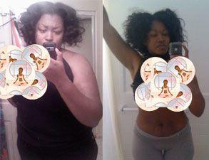 Oregon weight loss surgery reviews photo 3