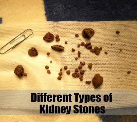 Different types of kidney stones my healthy kidneys for Different types of stone for houses