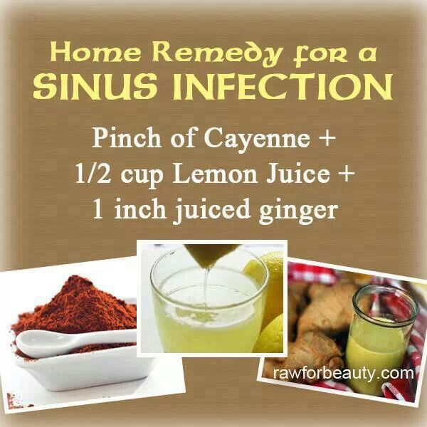 Holistic remedies for sinus infection