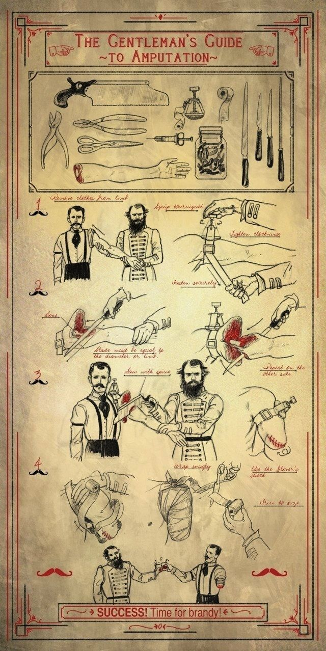 The Gentleman's Guide to Amputation.  Very HANDy.