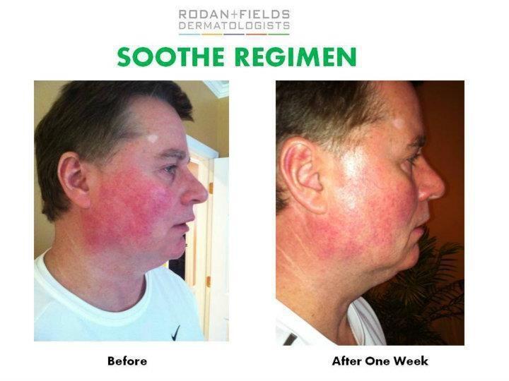 Soothe before and after sensitive skin soothe regimen rodan fields