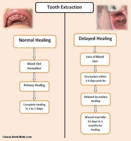 instructions after tooth extraction in hindi