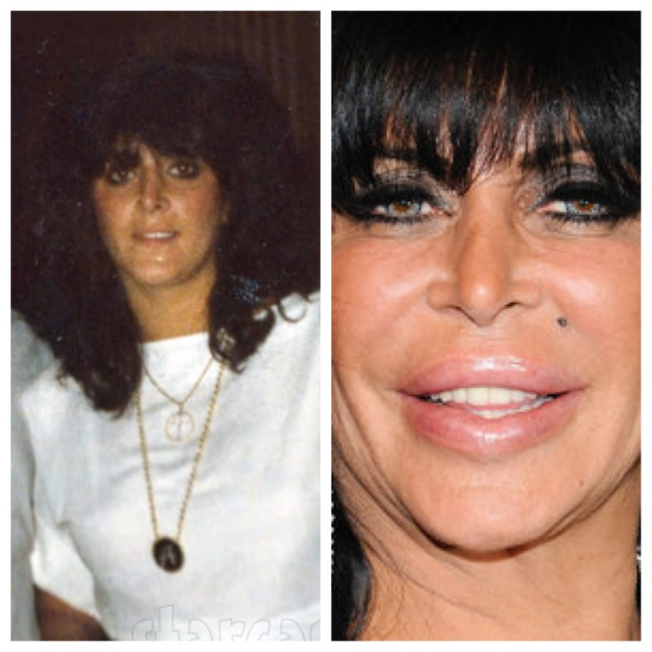 Big Ang Before And After Plastic Surgery Photos Is Big | Rachael ...