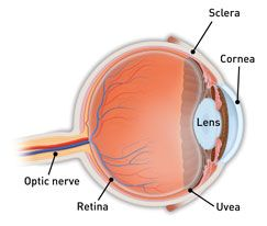 What is scleritis inflammation of the white of the eye