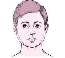 Que es la parotiditis, causas, síntomas y tratamiento