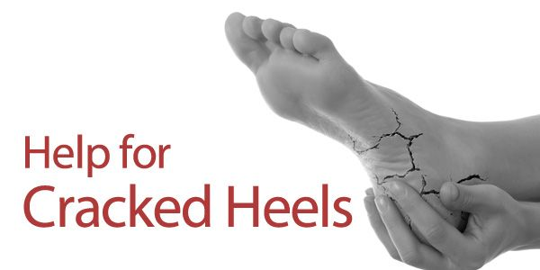 No one wants dry, rough heels while you're wearing your sandals this summer. Find some easy help for cracked heels here