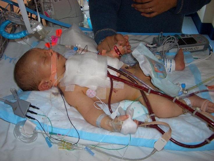 ecmo machine babies