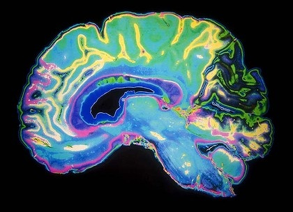 Researchers want to learn how all 85 billion neurons in the human brain are wired up. Via The Age