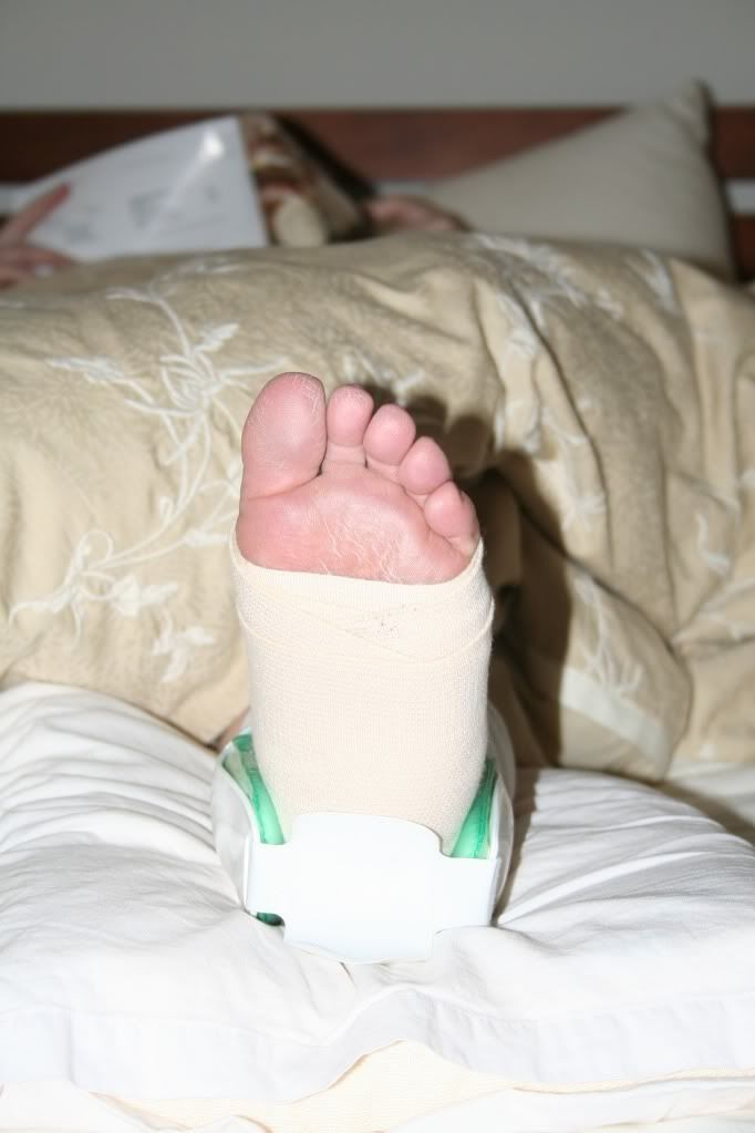 how to put on an air cast