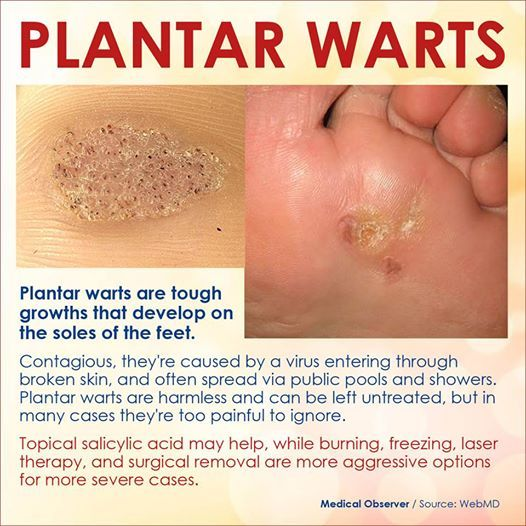Warts on Feet - Pictures, Treatment, Causes, Contagious