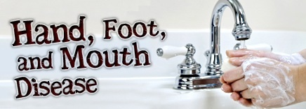 Important information on Hand Foot and Mouth Disease http://babylishadvice.com/?p=427