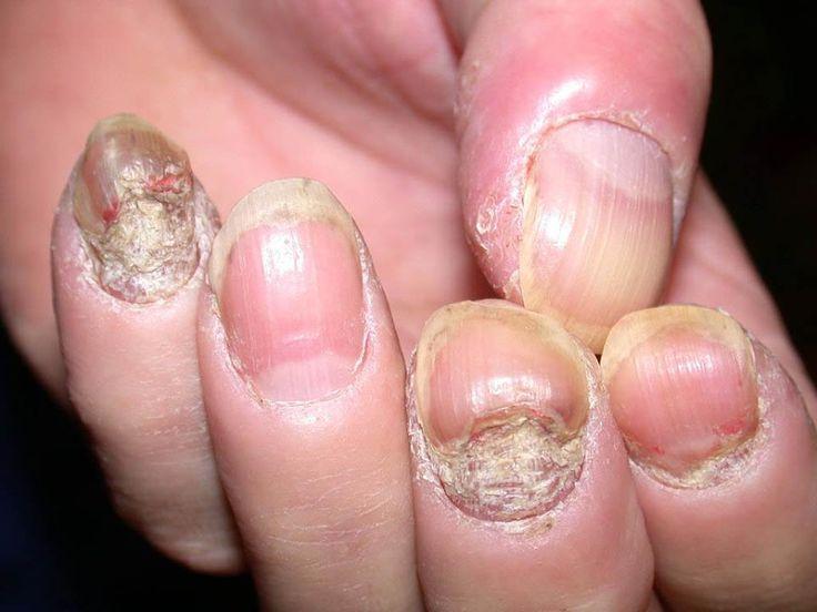 Natural Ways To Cure Psoriasis