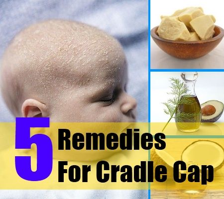 adult cradle cap causes and cures