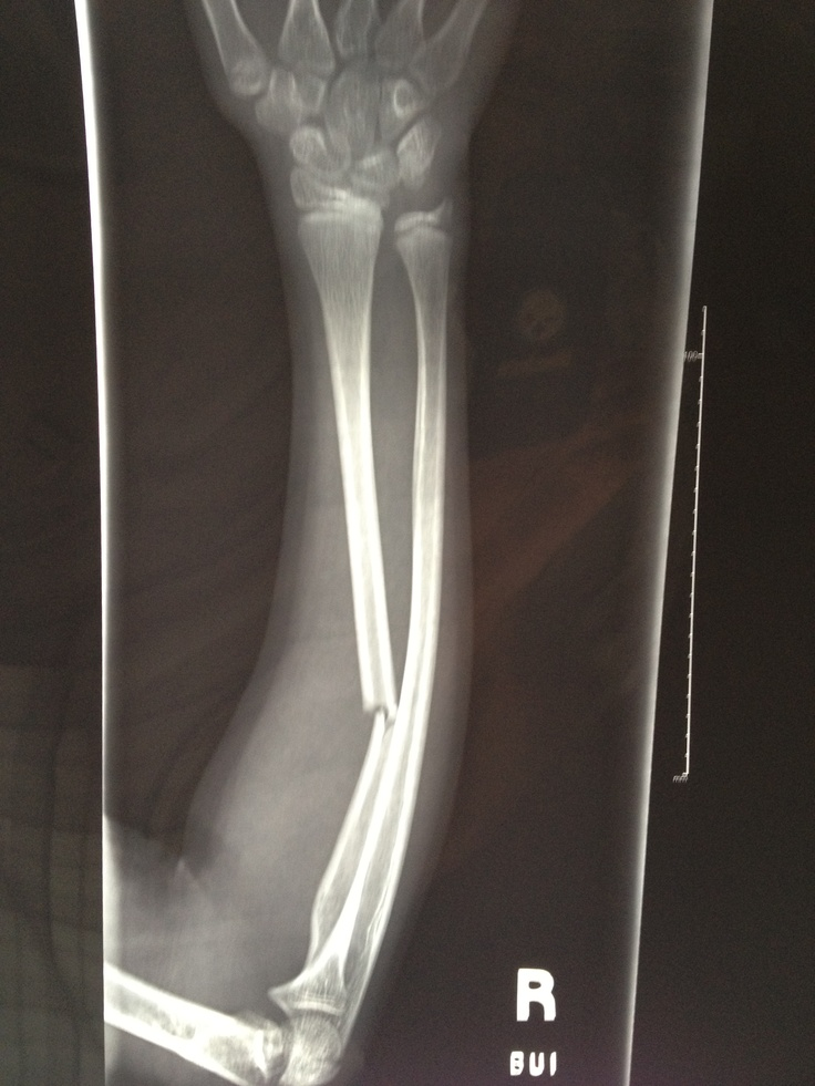 Xray Broken Arm Broken arm. #xr...