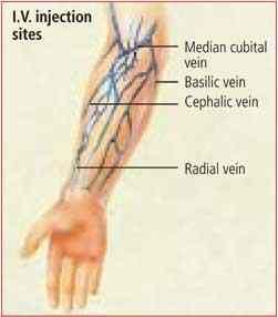 watch more like iv placement, Cephalic Vein