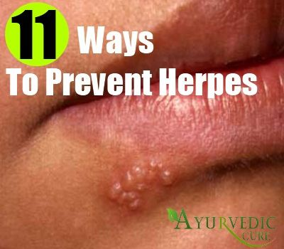 5 Things You Need to Know About Herpes in the Throat ...