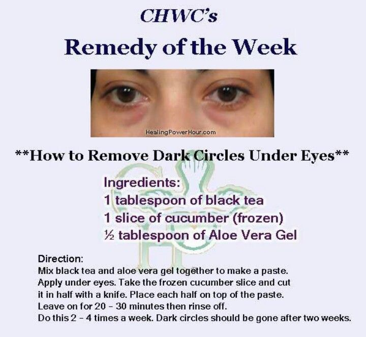 How to remove dark circles under eyes