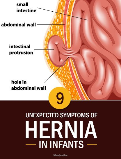 Know The Causes And Treatment Of Umbilical Hernia In Hindi Know The Causes And Treatment Of Umbilical Hernia In Hindi new pics