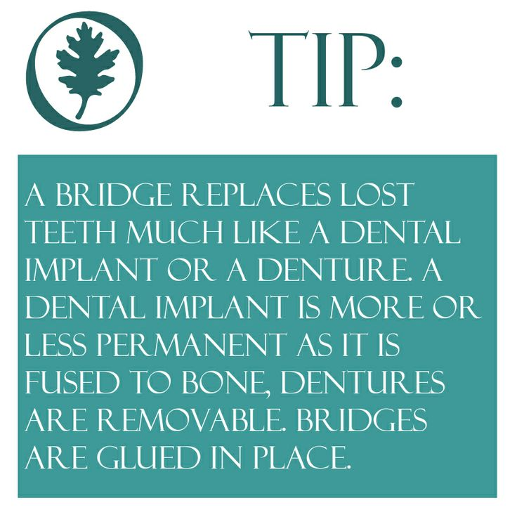 Crowns and Bridges helpful info A bridge replaces lost