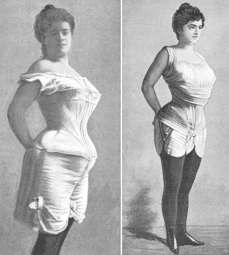 1900-corset-avant-apres