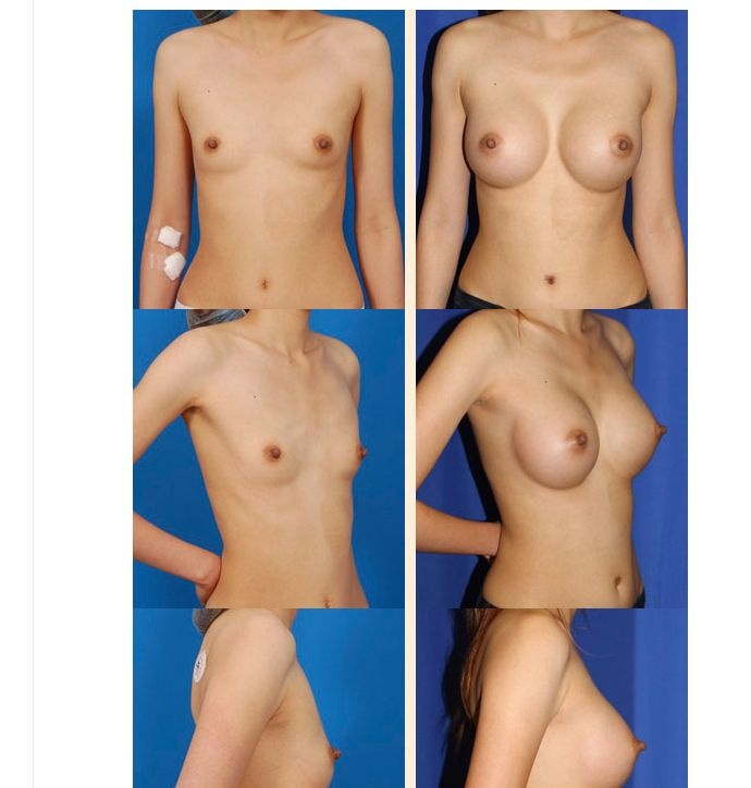 Allergan breast implant reconstruction