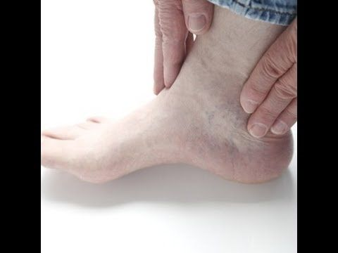 peripheral neuropathy relief