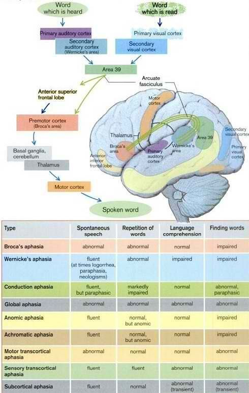 Great Layout of Aphasia Types | Maybe I'll be an SLP! | Pinterest