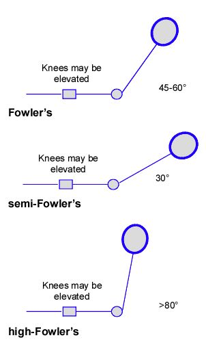 High Fowler's position = 80-90 degrees. Semi-Fowler's ...