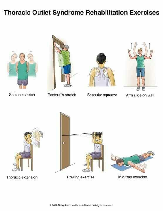 Thoracic outlet syndrome ex   work   Pinterest