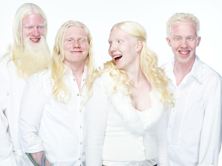 Albinismus – Wikipedia