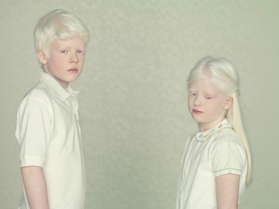 Melanistic and albino people