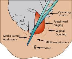 episiotomy illustration