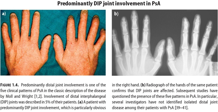Psoriatic Arthritis Tips From Physical and Occupational Therapists