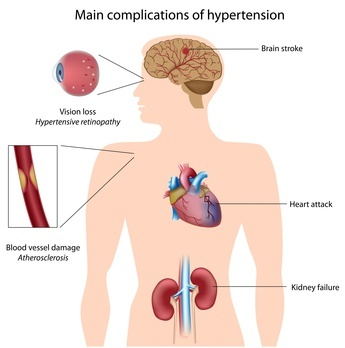 High blood pressure and sex: Overcome the - Mayo Clinic