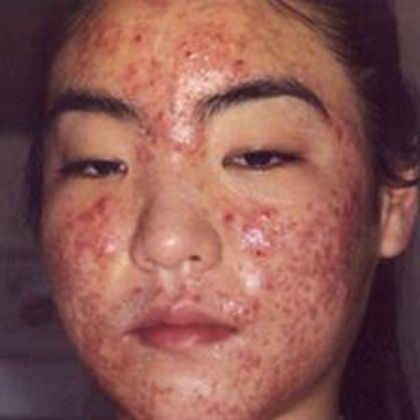 Best Home Remedy For Cystic Acne | Health/Dermatology | Pinterest