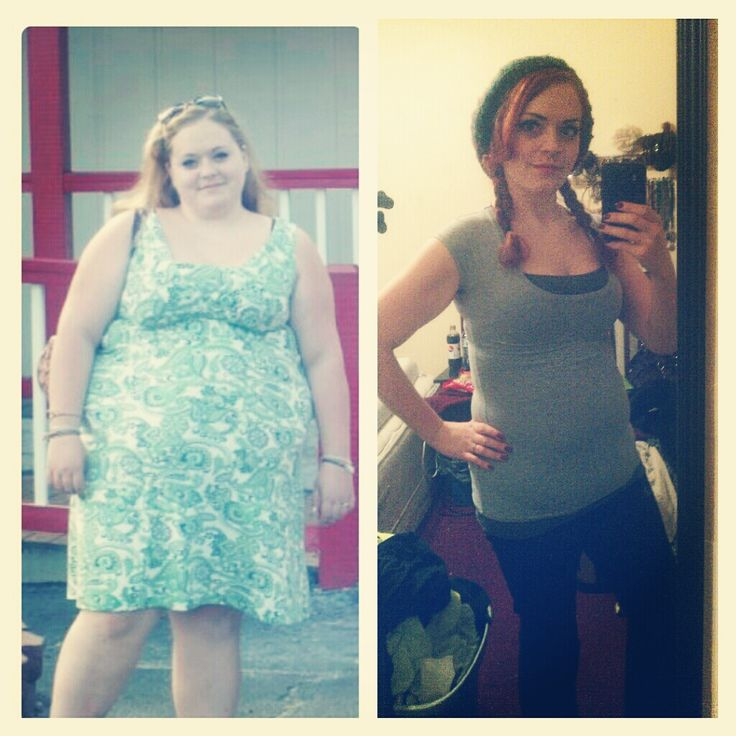 Gastric bypass dating site